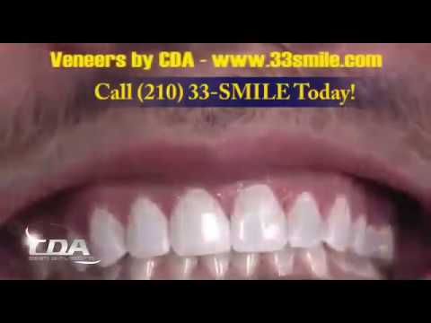 get-a-new-smile-in-one-day-with-dental-veneers-at-cosmetic-dental-associates-san-antonio,-tx