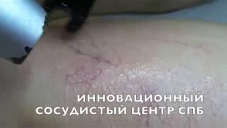 видео Удаление сосудистых звездочек на лице лазером