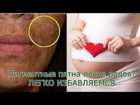 Как избавиться от пигментации на лице после родов