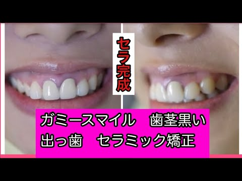 前歯2本が金属を使用していて歯ぐきが黒ずんでいた