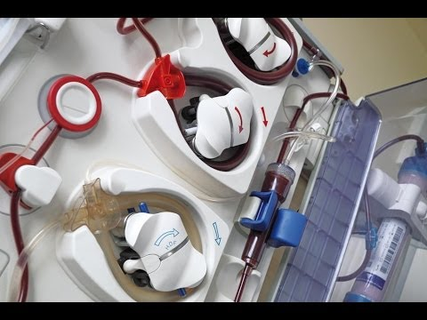 Haemodialysis-Collecting Dialysate Sample from Dialysis