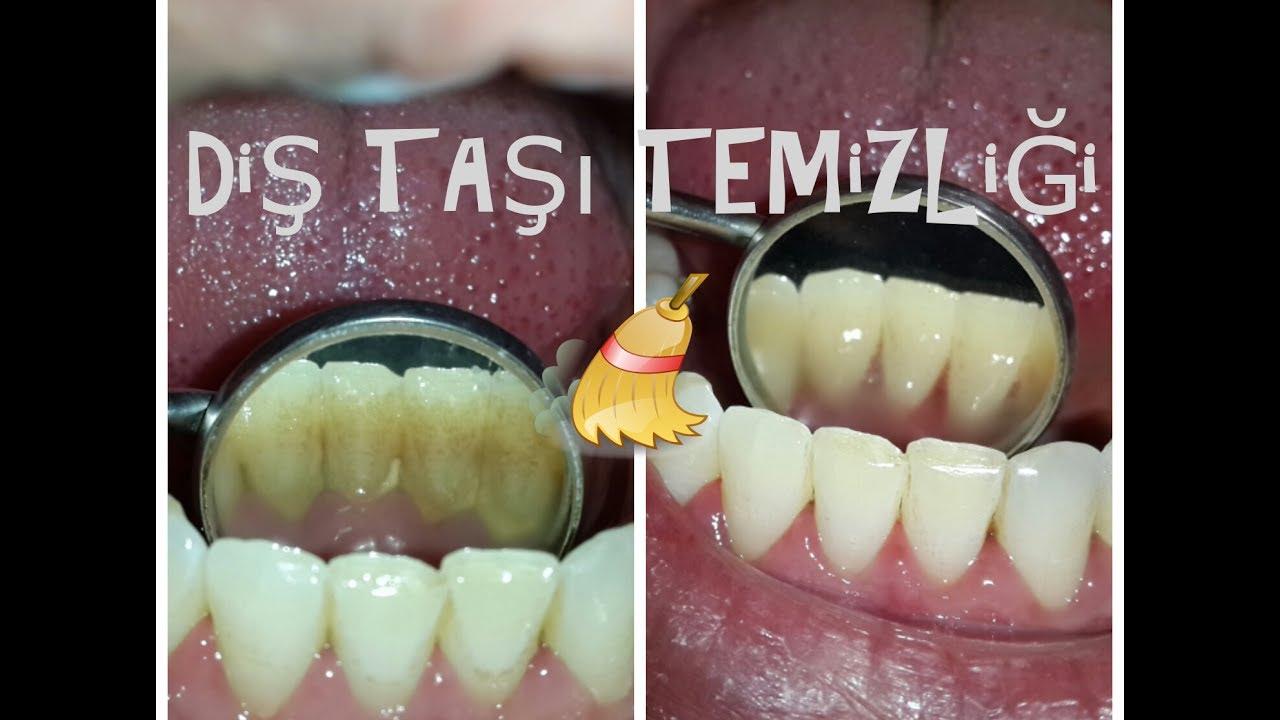Diş taşı nedir Nasıl çıkar ve temizlenir