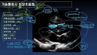 가슴통증시 심장초음파의 역할