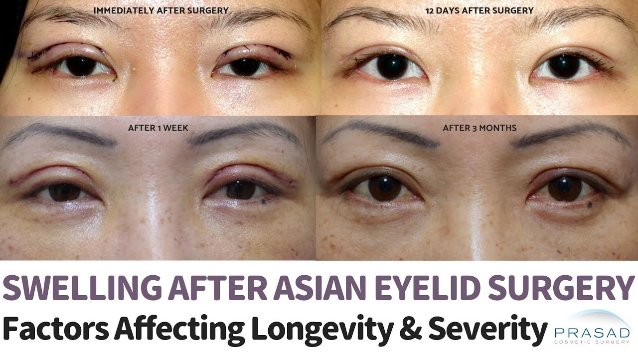 Temporary Swelling after Asian Double Eyelid Surgery - Factors that