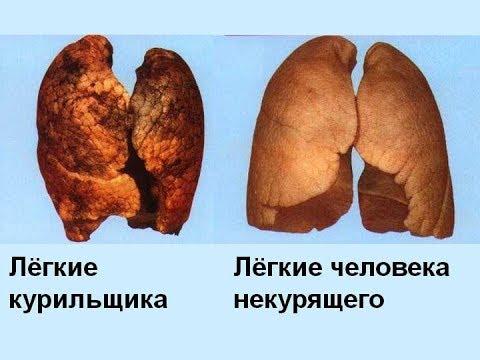 ★ Как очистить легкие после курения: 4 способа, которые выведут токсины из организма!