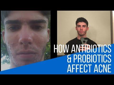 hqdefault - Minocycline Makes Acne Worse