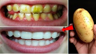 teeth whitening and scaling in seconds, you will have pearl-like teeth