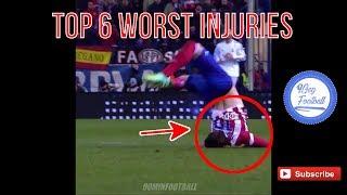 Baixar Top six worst injuries October 2017 - 9GagFootball