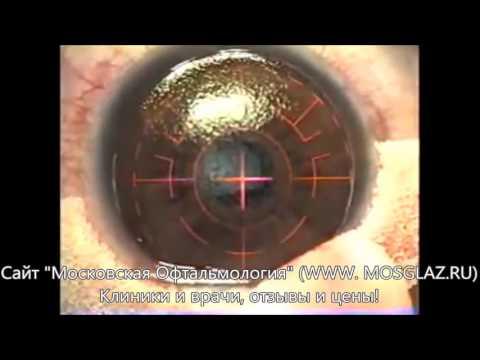 Зрение минус 75