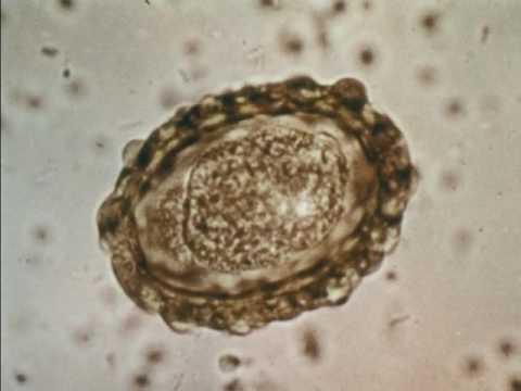 Hogyan bánik az ascaris, Pinworms hány tojást, Humán pinworm
