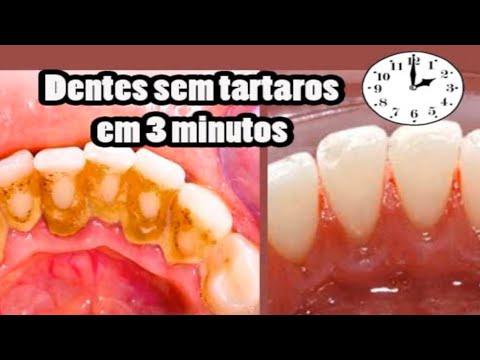 Sem Tartaros Em 3 Minutos Dentes Brancos E Sem Tartaros Dica