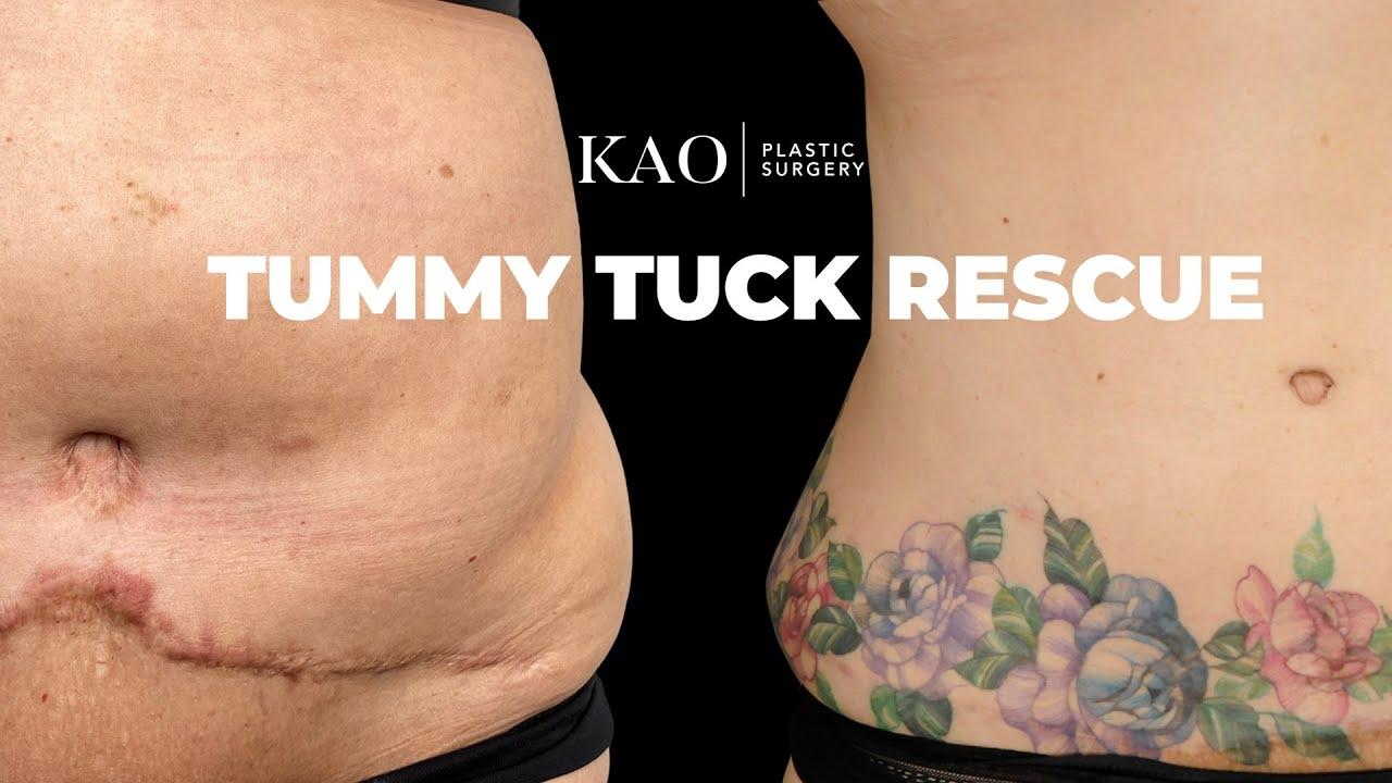Tummy Tuck Rescue - Tummy Tuck With 360 Sculpt Liposuction - KAO Plastic Surgery - Graphic Content