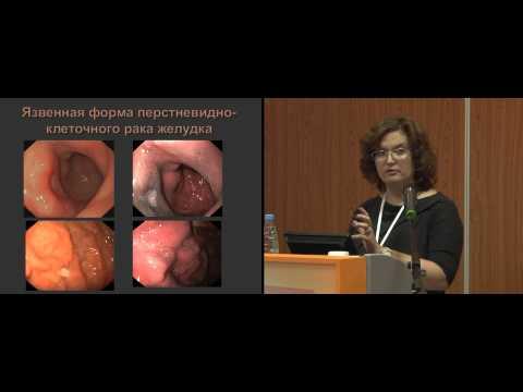 Эндоскопическая диагностика гастритоподобных форм лимфом и перстневидно-клеточного рака желудка