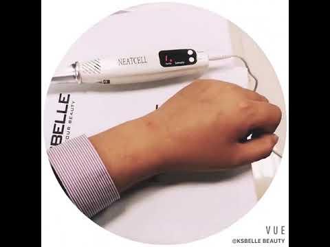 Dispositivo Láser Picosecond Removedor De Tatuajes Lunares Uso Profesional Y Para Hogar