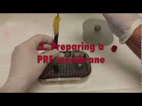 PRF metoda