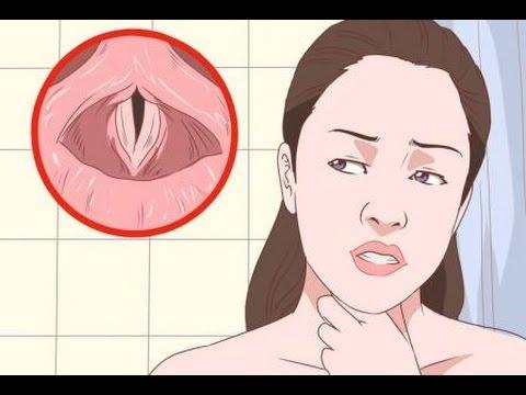 Remedios naturales para laringitis en ninos