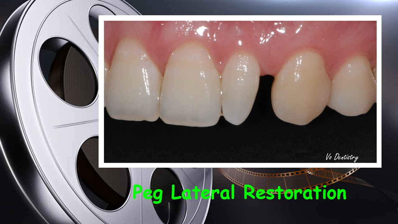 Peg Lateral Restoration  YouTube