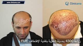 زراعة الشعر في تركيا للسيد سالم من الإمارات العربية المتحدة