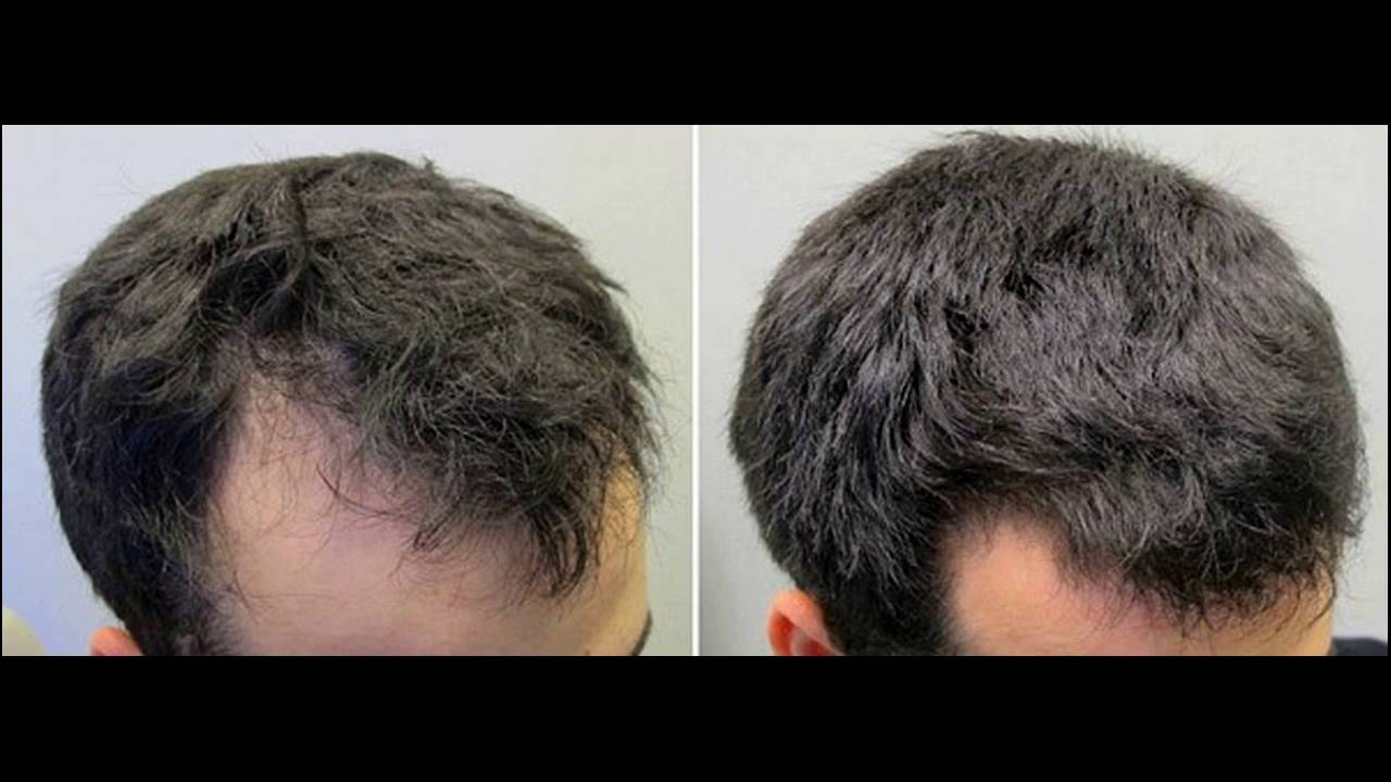 Natural Ways To Regrow Hair In 15days YouTube