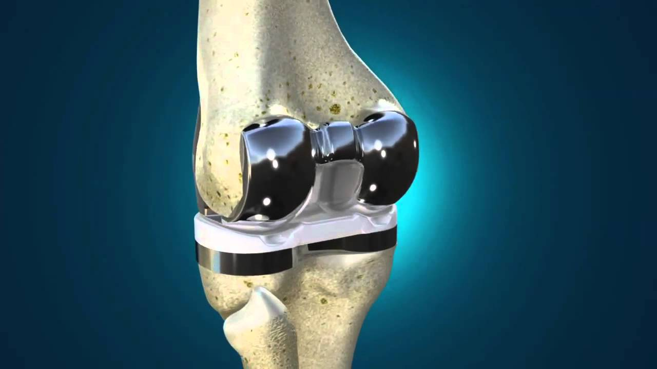 Dr  Robinson on Exactech Optetrak Total Knee Replacement System