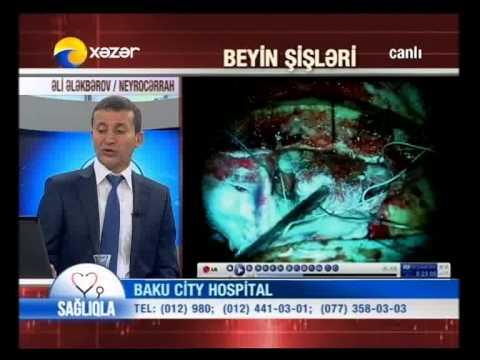 Baku City Hospital.T.e.n. Dr.Əli Ələkbərov Neyrocərrah.Beyin şişləri.
