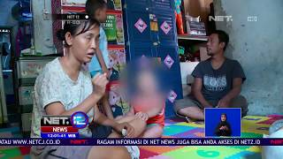 Download Video Bayi Lahir Tanpa Mata, Diduga Karena Ibu Kurang Gizi - NET 12 MP3 3GP MP4