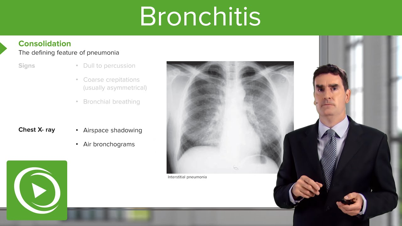 Bronchitis: Consequences, Symptoms & Treatment – Respiratory Medicine | Lecturio - YouTube