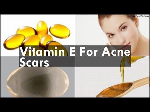 hqdefault - Does Vitamin E Oil Help Fade Acne Scars