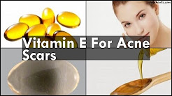hqdefault - Does Vitamin E Gel Help Acne Scars