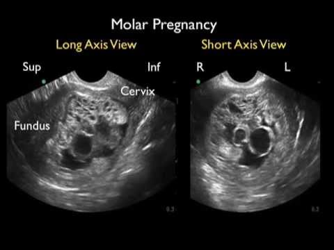 Diagnosis of Molar Pregnancy