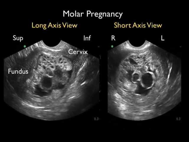 Diagnosis Of Molar Pregnancy