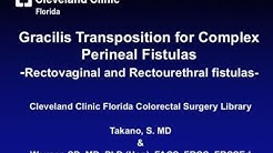 Gracilis Transposition: Treating Complex Perineal Fistulas
