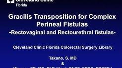 Gracilis Transposition: Treating Complex Perineal Fistulas