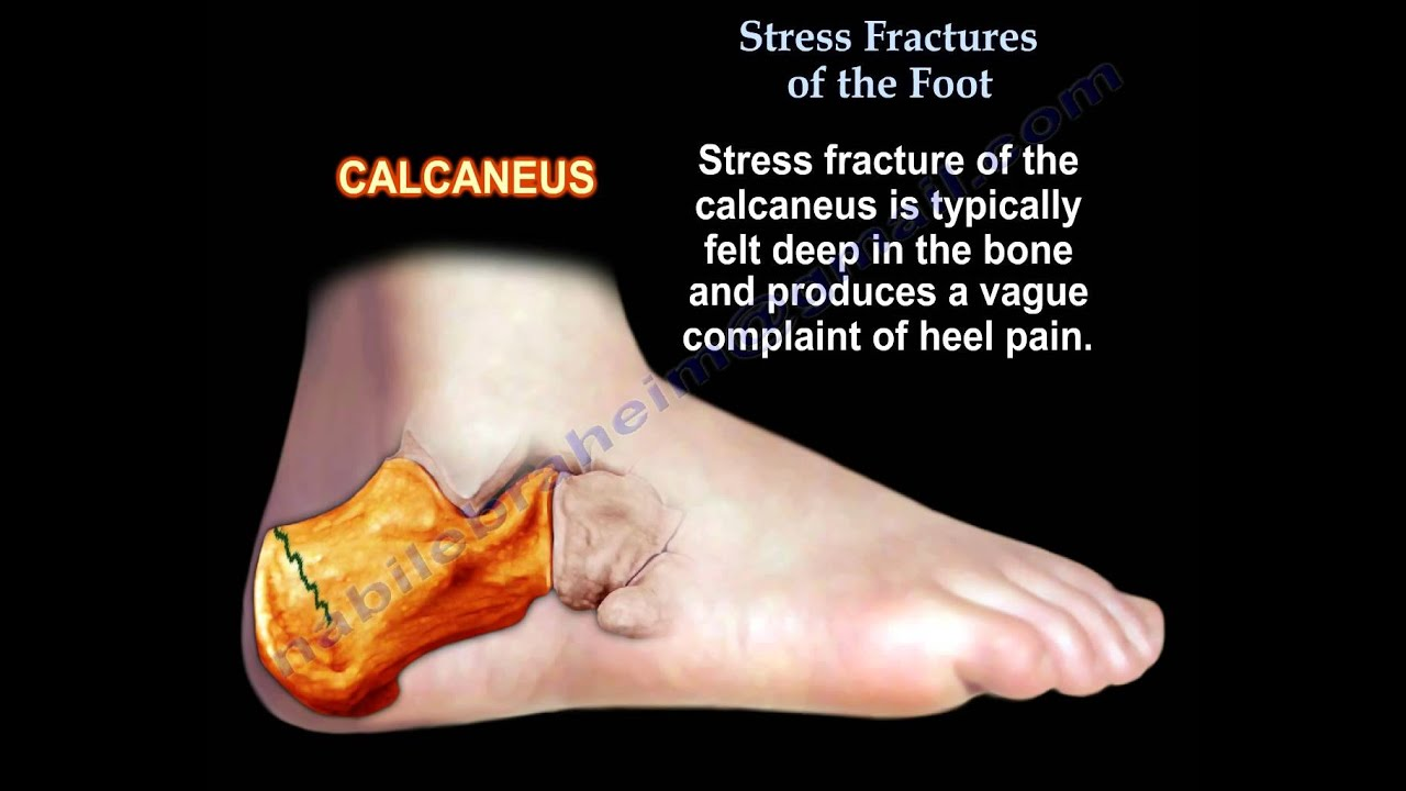 How to Identify a Stress Fracture photo
