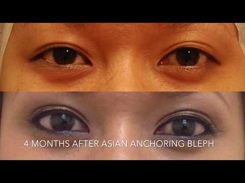 #chaselaymd-worse-than-average-asian-blepharoplasty-healing-process