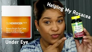 Products That Are Helping With My Rosacea & Under Eye l Marylin Morales