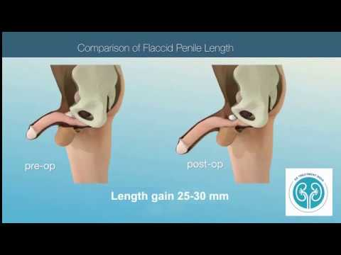 Penis Lengthening Surgery Facts Studies Complications