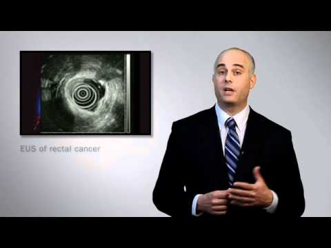 Endoscopic Ultrasound - Mayo Clinic