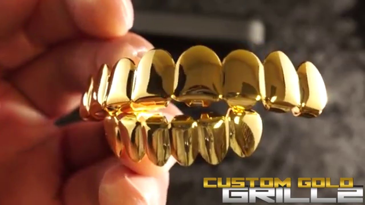 14k Gold 8 Tooth Grills by Custom Gold Grillz
