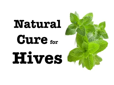 ✔Best Natural & Instant Cure for Hives, Urticaria, Angioedema, Prickly Heat, skin rash, itchy skin