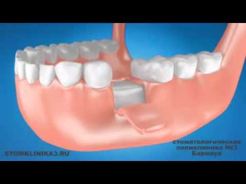 Стоматологическая поликлиника №3 г. Барнаул: 7 факторов успеха современной имплантации зубов