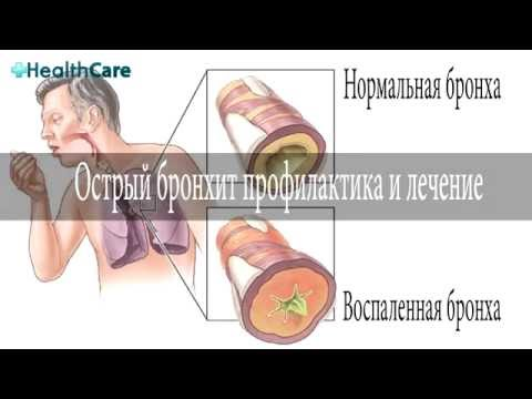 Острый бронхит: симптомы у взрослых, лечение, причины