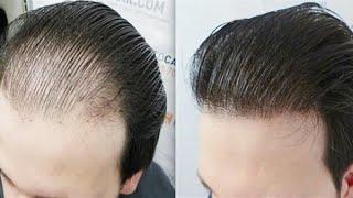 هير جرو للرجال والنساء HAIR GROW اتصل بنا 01091173487