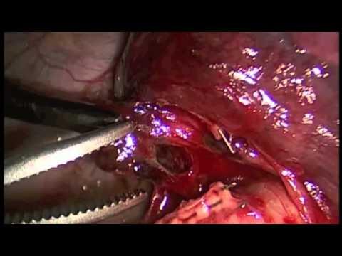 Minimally Invasive Thoracic Surgery: Lingulectomy