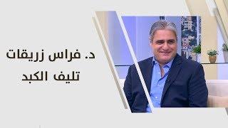 د. فراس زريقات - تليف الكبد