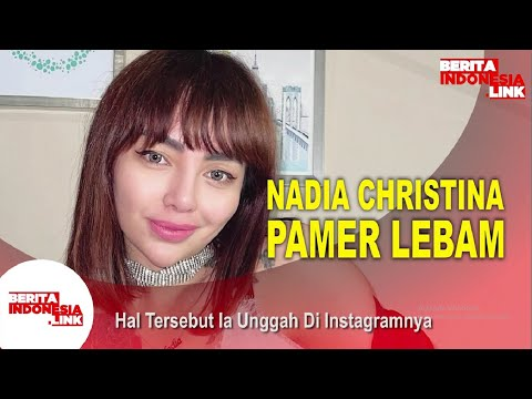 Nadia Christina Tunjukkan Bukti KDRT