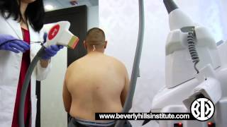 Laser Hair Removal/Reduction for a Man