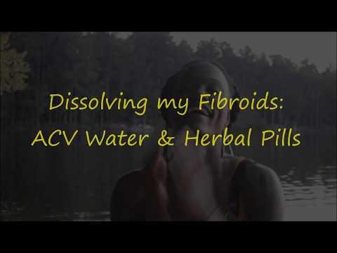 Dissolving My Fibroids! Apple Cider Vinegar & Herbal Pills
