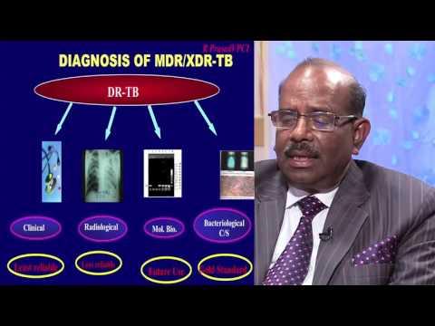 MDR TB...DIAGNOSIS