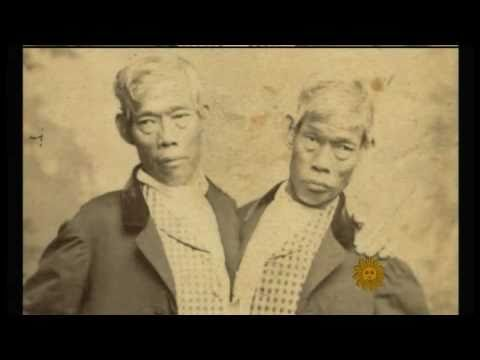 Chang and Eng Bunker, Siamese twin brothers.